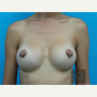 25-34 year old woman treated with Breast Implants after 3095174