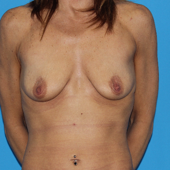 45-54 year old woman treated with Breast Lift with Implants before 3201584
