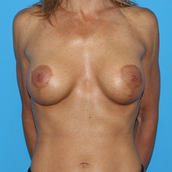 45-54 year old woman treated with Breast Lift with Implants after 3201584