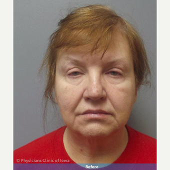 45-54 year old woman treated with Facelift before 3644719