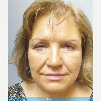 45-54 year old woman treated with Facelift after 3644719
