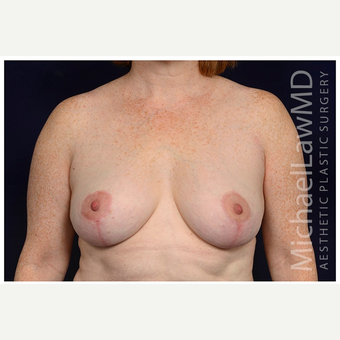 45-54 year old woman treated with Breast Lift after 3070806