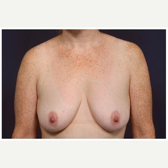 45-54 year old woman treated with Breast Lift before 3070806