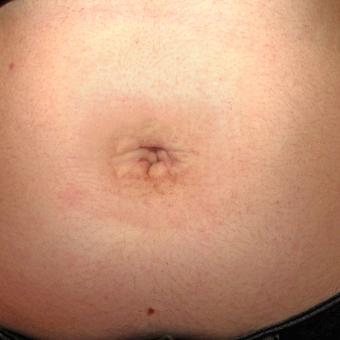 18-24 year old woman treated with Belly Button Surgery after 2749032