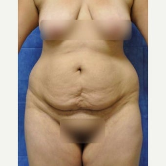 Circumferential Tummy Tuck before 2021418