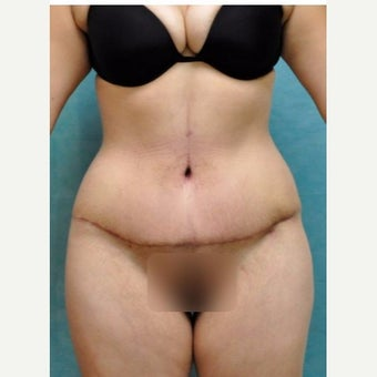 Circumferential Tummy Tuck after 2021418