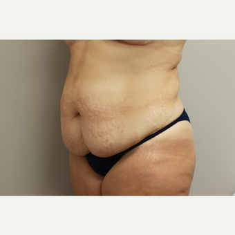 35-44 year old woman treated with Tummy Tuck before 3651943