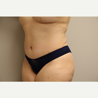 35-44 year old woman treated with Tummy Tuck after 3651943