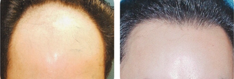25-34 year old man treated with Hair Transplant before 3502840