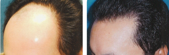 25-34 year old man treated with Hair Transplant after 3502840
