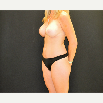 Tummy tuck and revision breast augmentation and lift after 3743026