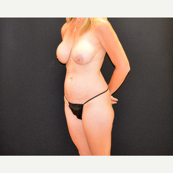 Tummy tuck and revision breast augmentation and lift before 3743026