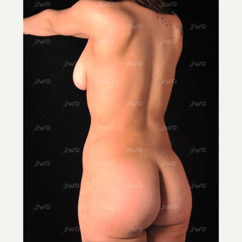 25-34 year old woman treated with Liposculpture after 3069295