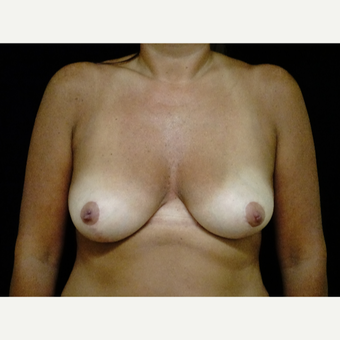 45-54 year old woman treated with Breast Reduction after 3413749