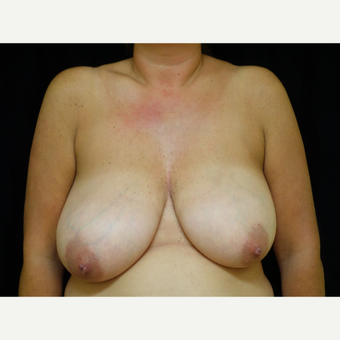 45-54 year old woman treated with Breast Reduction before 3413749