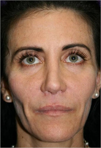 50 Year Old Female with loss of facial volume before 718157