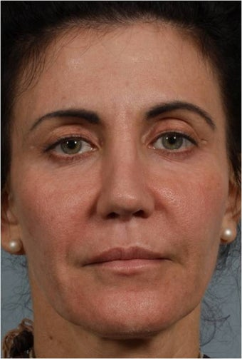 50 Year Old Female with loss of facial volume after 718157