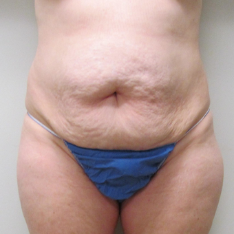Tummy Tuck for this 52 Year Old Woman before 3289233
