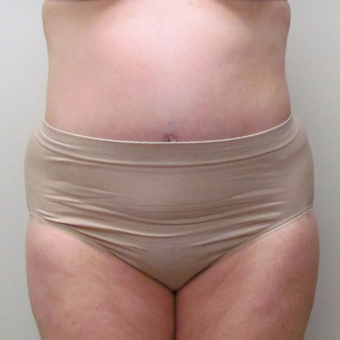 Tummy Tuck for this 52 Year Old Woman after 3289233