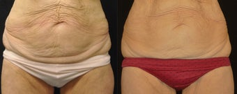 VelaShape III for skin laxity before 1174582