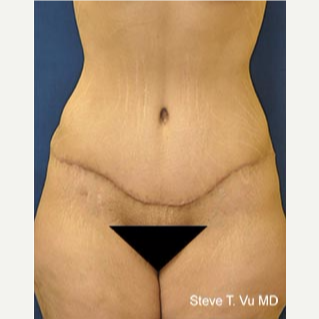 35-44 year old woman treated with Tummy Tuck after 3577981