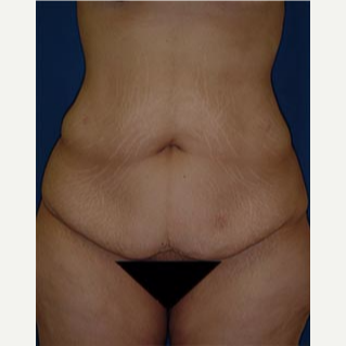 35-44 year old woman treated with Tummy Tuck before 3577981