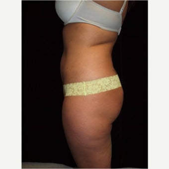 35-44 year old woman treated with Laser Liposuction after 2568551