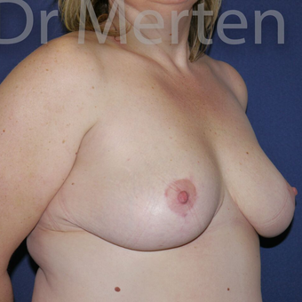 Breast Reduction after 3681282