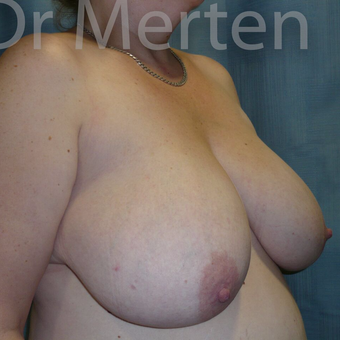 Breast Reduction before 3681282