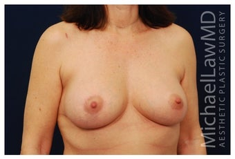 Breast Lift after 1262645