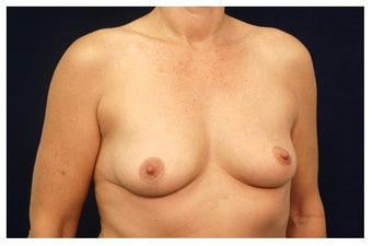Breast Lift before 1262645