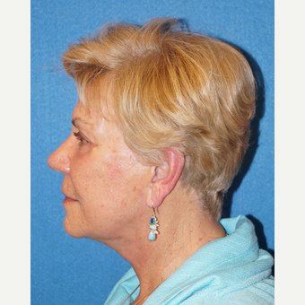 72 year old woman treated with Facelift after 3576584