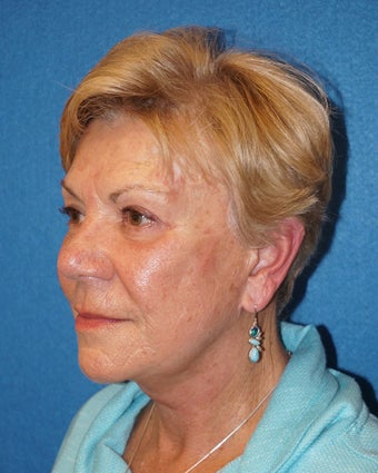 72 year old woman treated with Facelift 3576584