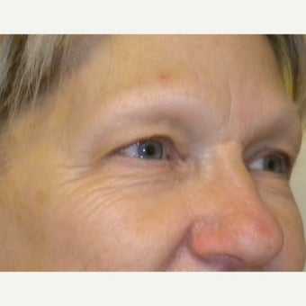 55-64 year old woman treated with Eye Bags Treatment before 2609083