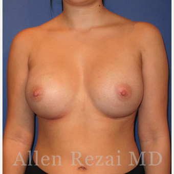 Bilateral Breast Augmentation & Correction of size Asymmetry  - Pre- & 4 Weeks  Post-op after 3473920