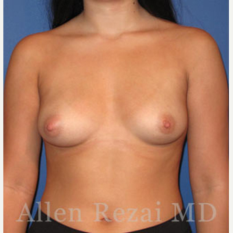 Bilateral Breast Augmentation & Correction of size Asymmetry  - Pre- & 4 Weeks  Post-op before 3473920