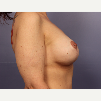 45-54 year old woman treated with Breast Lift with Implants after 3666154