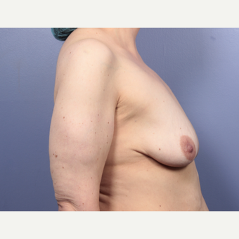 45-54 year old woman treated with Breast Lift with Implants before 3666154