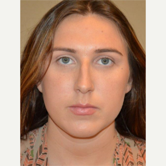 25-34 year old woman treated with Rhinoplasty before 3657946
