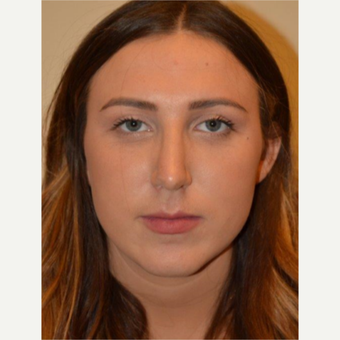 25-34 year old woman treated with Rhinoplasty after 3657946