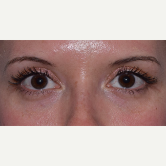 25-34 year old woman treated with Restylane for Tear Troughs after 3048109
