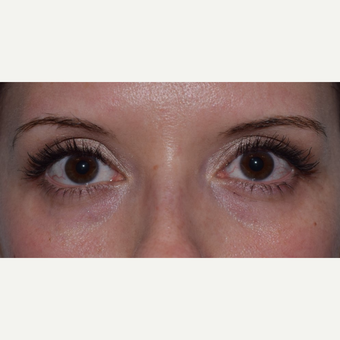 25-34 year old woman treated with Restylane for Tear Troughs before 3048109