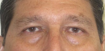 56 year old Asian male who underwent upper lid blepharoplasty surgery after 811464