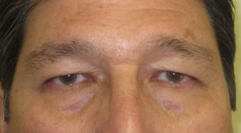 56 year old Asian male who underwent upper lid blepharoplasty surgery before 811464