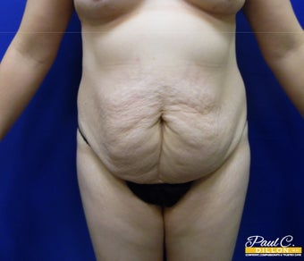 35-44 year old woman treated with Tummy Tuck before 3577313