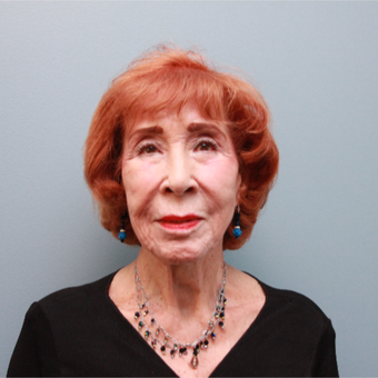 83 year old woman treated with a Facelift before 3544472