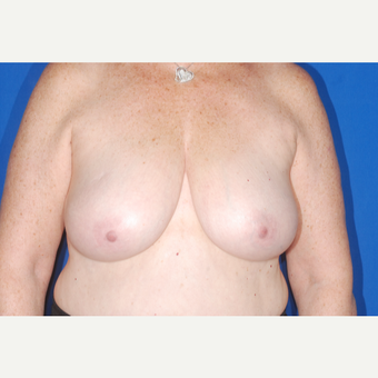 65-74 year old woman treated with Breast Reduction before 3695479