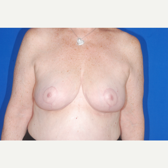 65-74 year old woman treated with Breast Reduction after 3695479