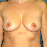 45 year old woman treated with Breast Lift with Implants before 3666153