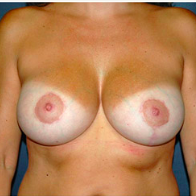 45 year old woman treated with Breast Lift with Implants after 3666153